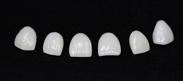 Facettes dentaires E-max