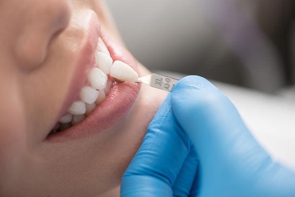 Doctor choosing teeth model for smiling girl.jpg