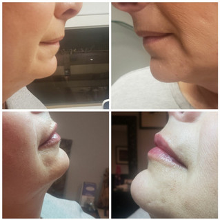 Juverderm Lips Before and After