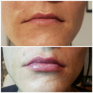 Juverderm Lips Before and Afte