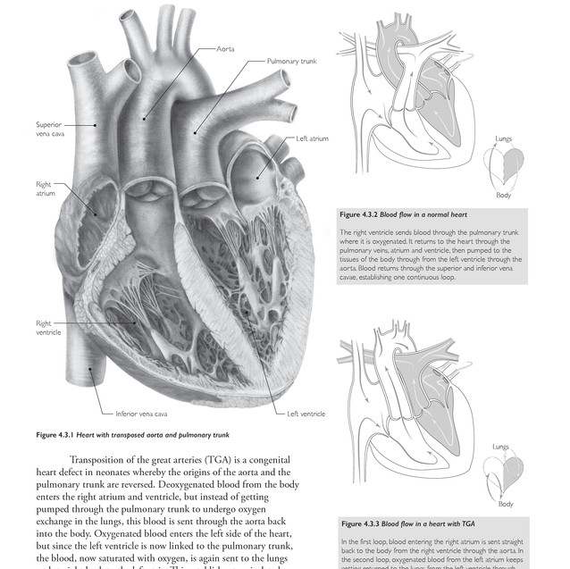 Transposition of the Great Arteries Textbook Mock-Up
