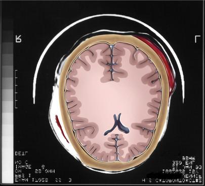 Illustrated Brain Scan Showing Hematomas