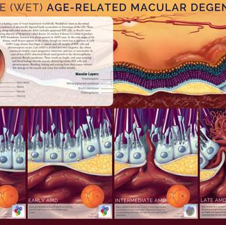 AMD Pathology Editorial Illustration