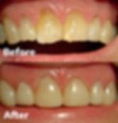 Veneers Dental 206 Townsville 3.jpg