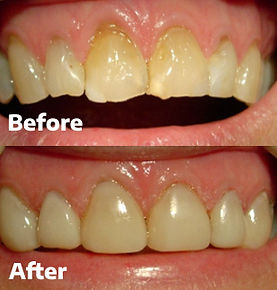 Veneers Dental 206 Townsville 3.jpg