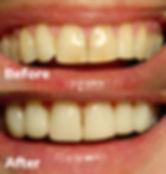 Veneers Dental 206 Townsville 2.jpg