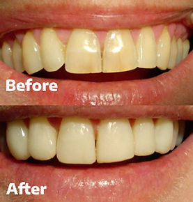 Veneers Dental 206 Townsville 2.jpg