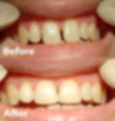 Veneers Dental 206 Townsville 1.jpg
