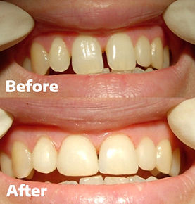 Veneers Dental 206 Townsville 1.jpg