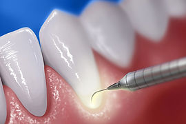 Laser soft tissue Dental 206 Townsville.