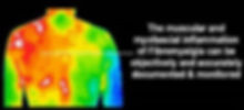 Thermography, Fibro.jpg