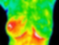 Breat thermography.jpg