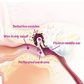 inner ear.webp