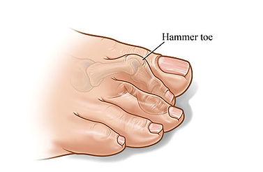 hammer-toe.jpg