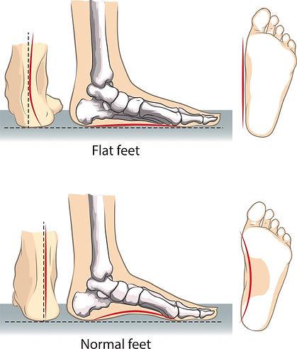 flat-feet (1).jpg