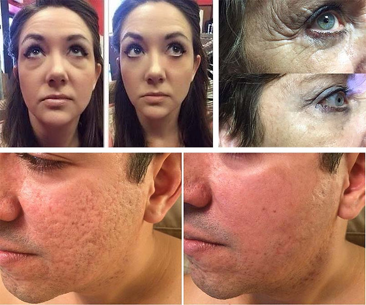 Resultado Instantly Ageless