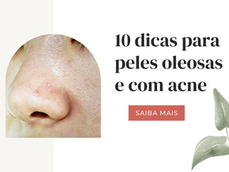 10 dicas para peles oleosas e acneicas!