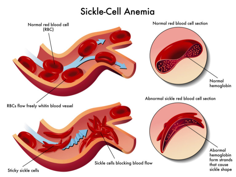 Illustration of a Sickle Cell Blockage