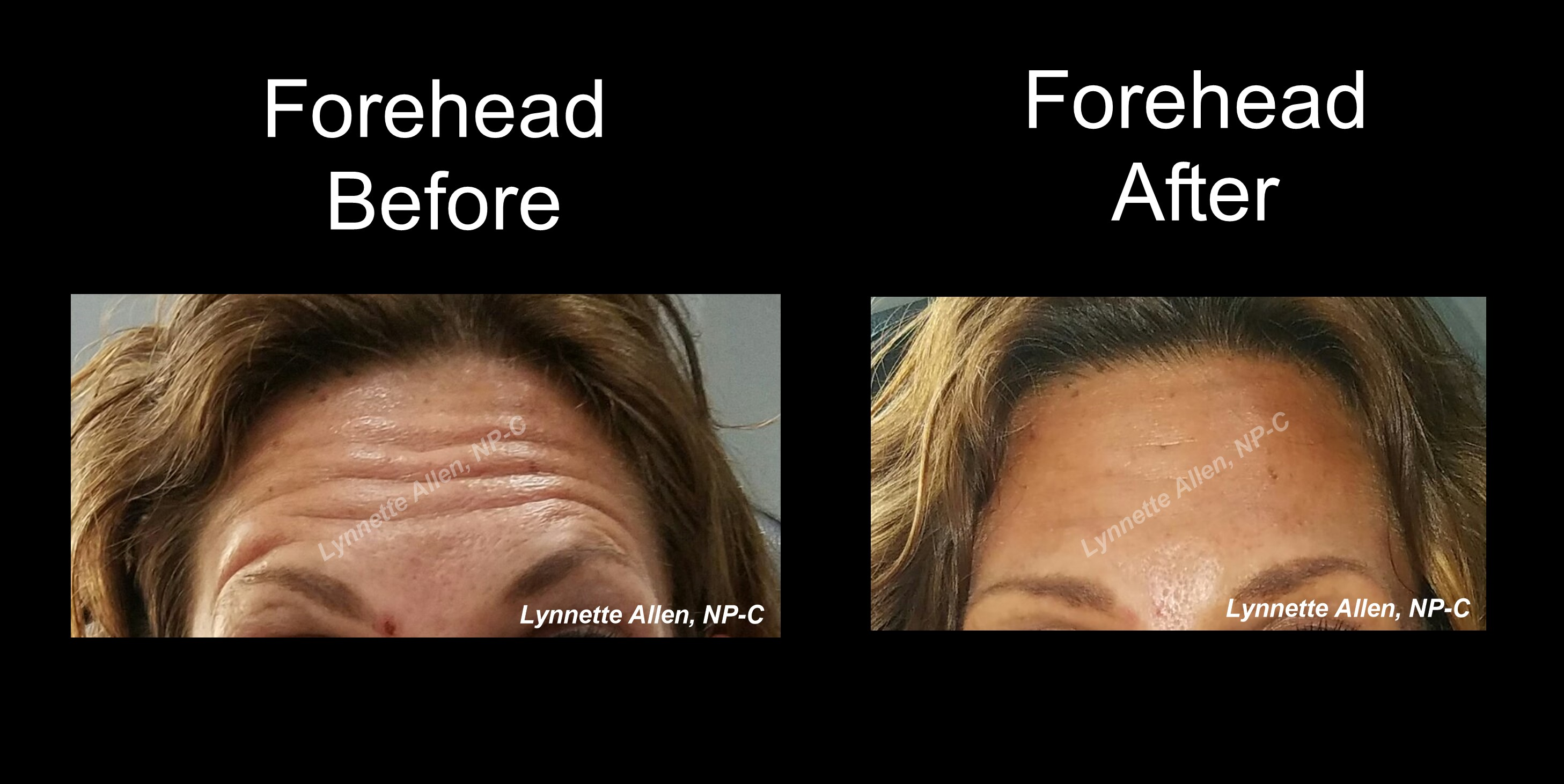 Botox for Forehead before/ after