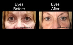 Filler for Eyes and Tear Troughs