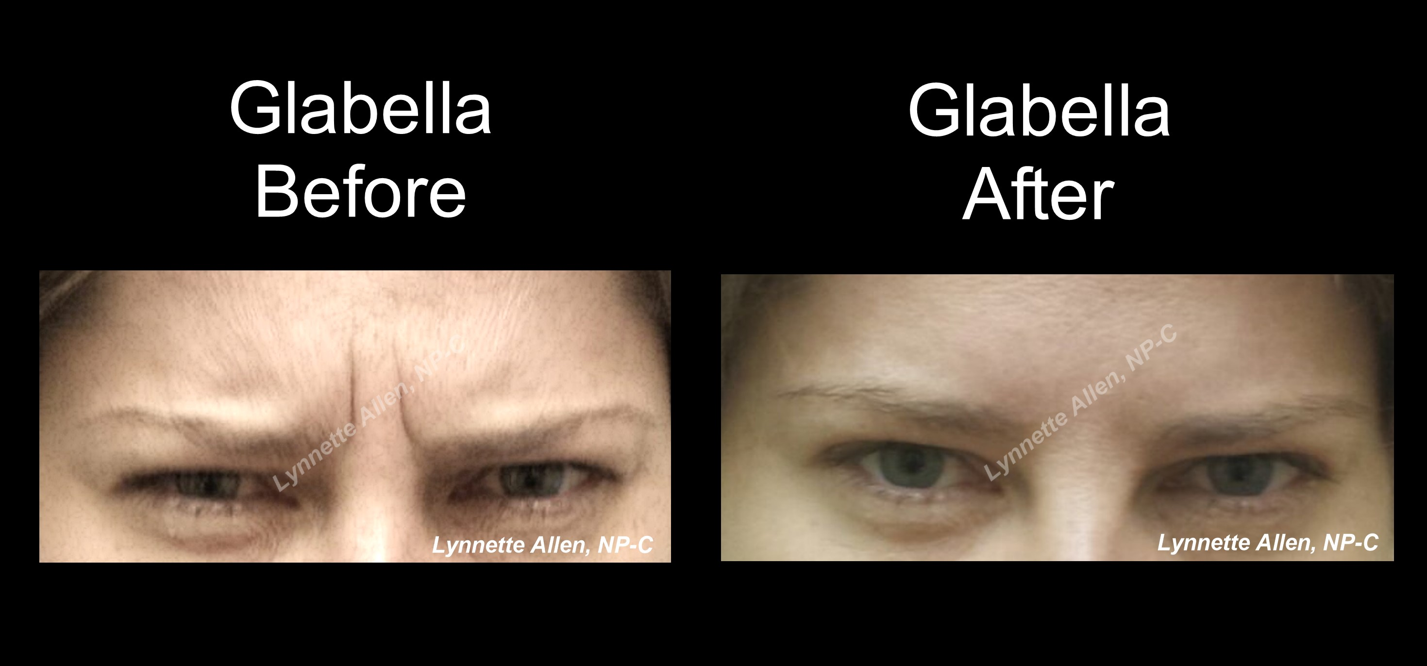 Botox for Frown Lines before/after
