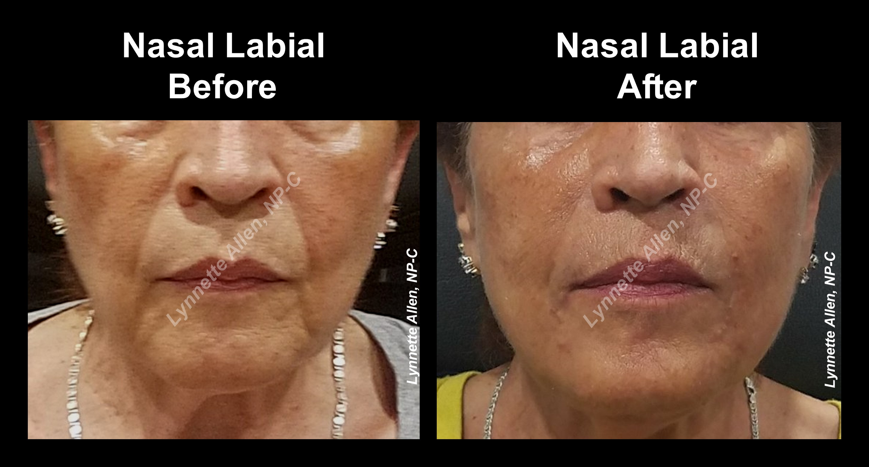 Nasal_Labial-Before & After