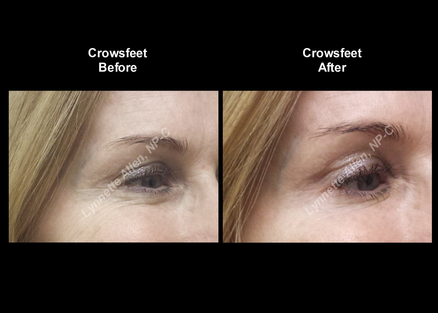 Crows feet before and after
