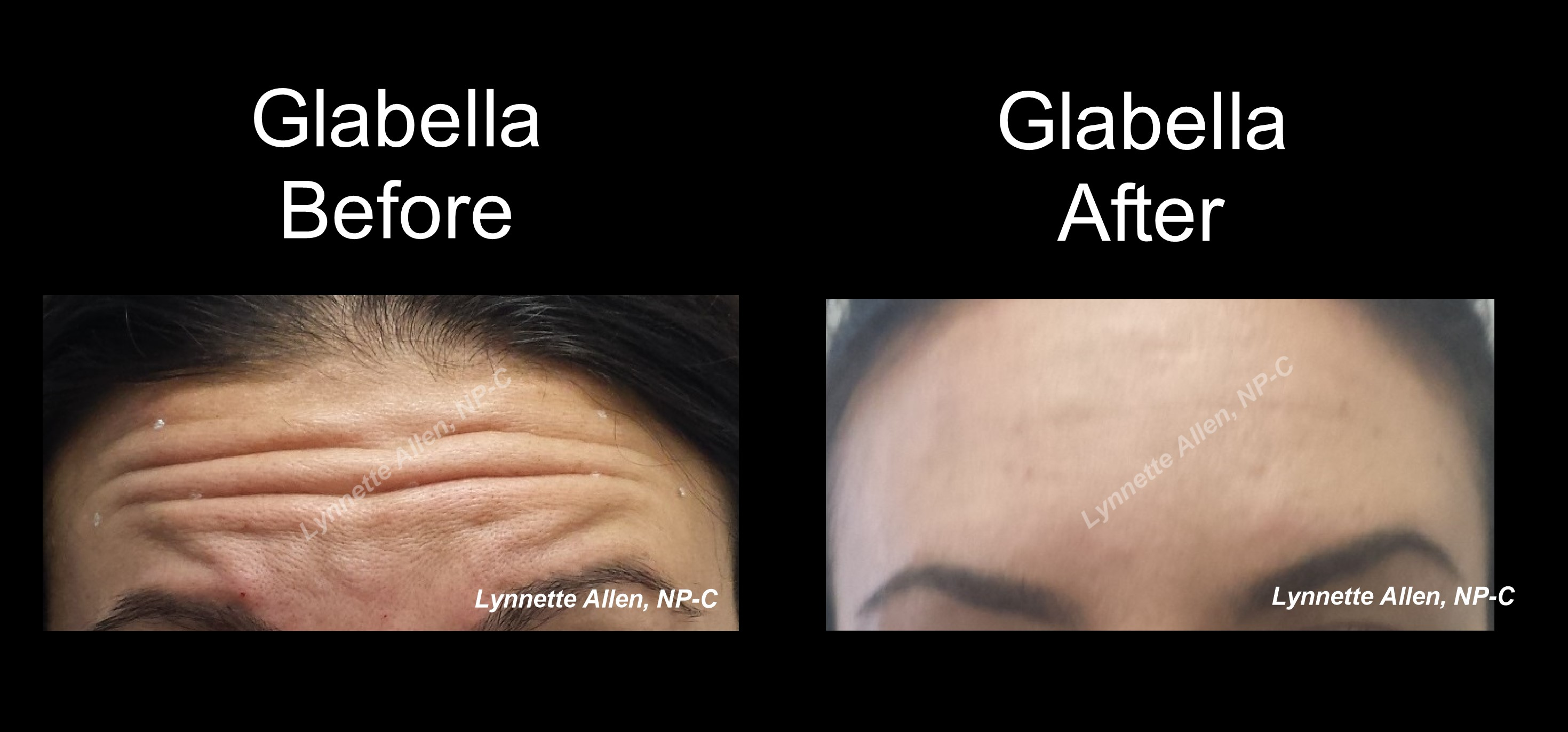 Botox for Forehead before/after