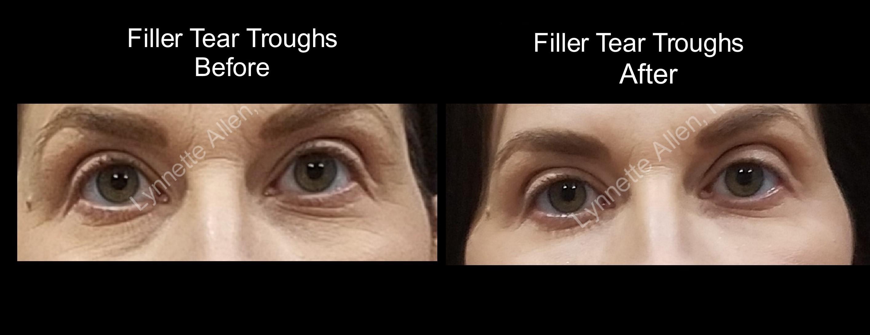Eye Filler and Botox combo