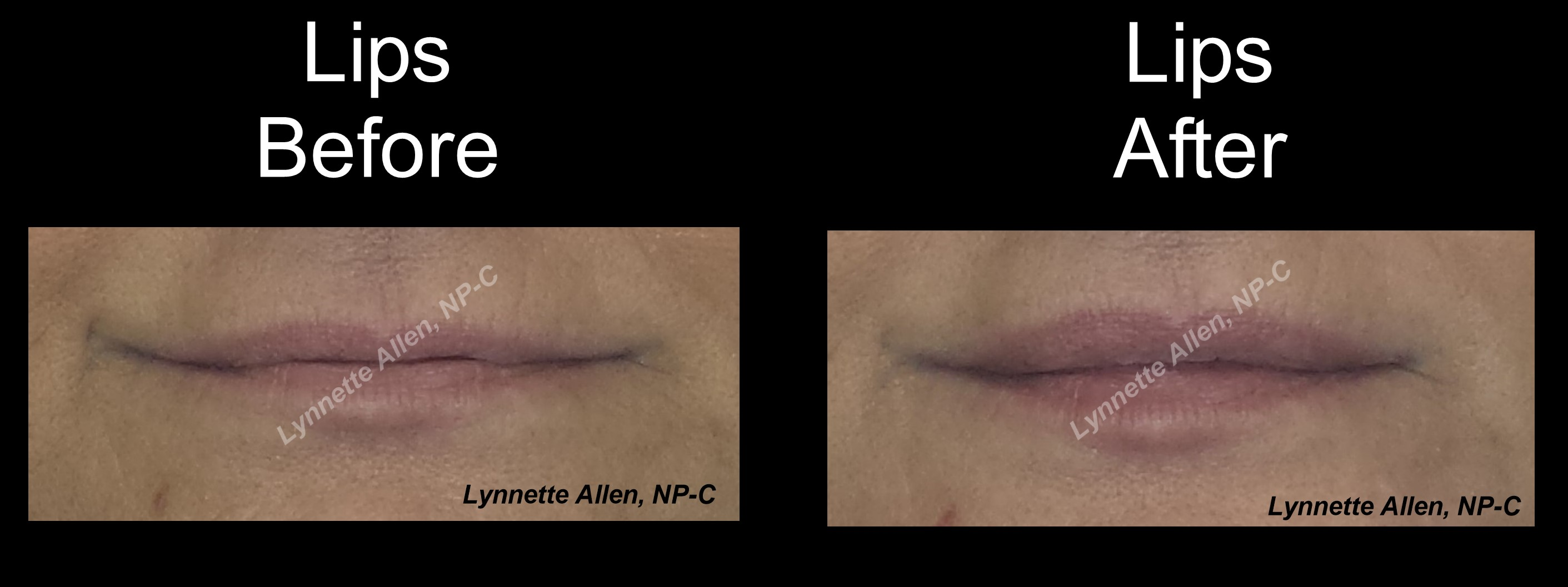 Filler for Natural looking Lips