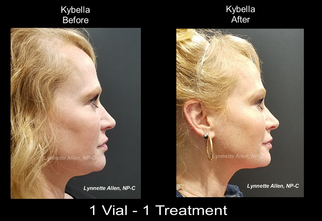 Kybella for Neck Fat
