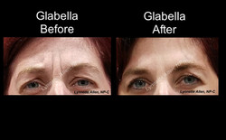 Botox for Frown Lines before /after