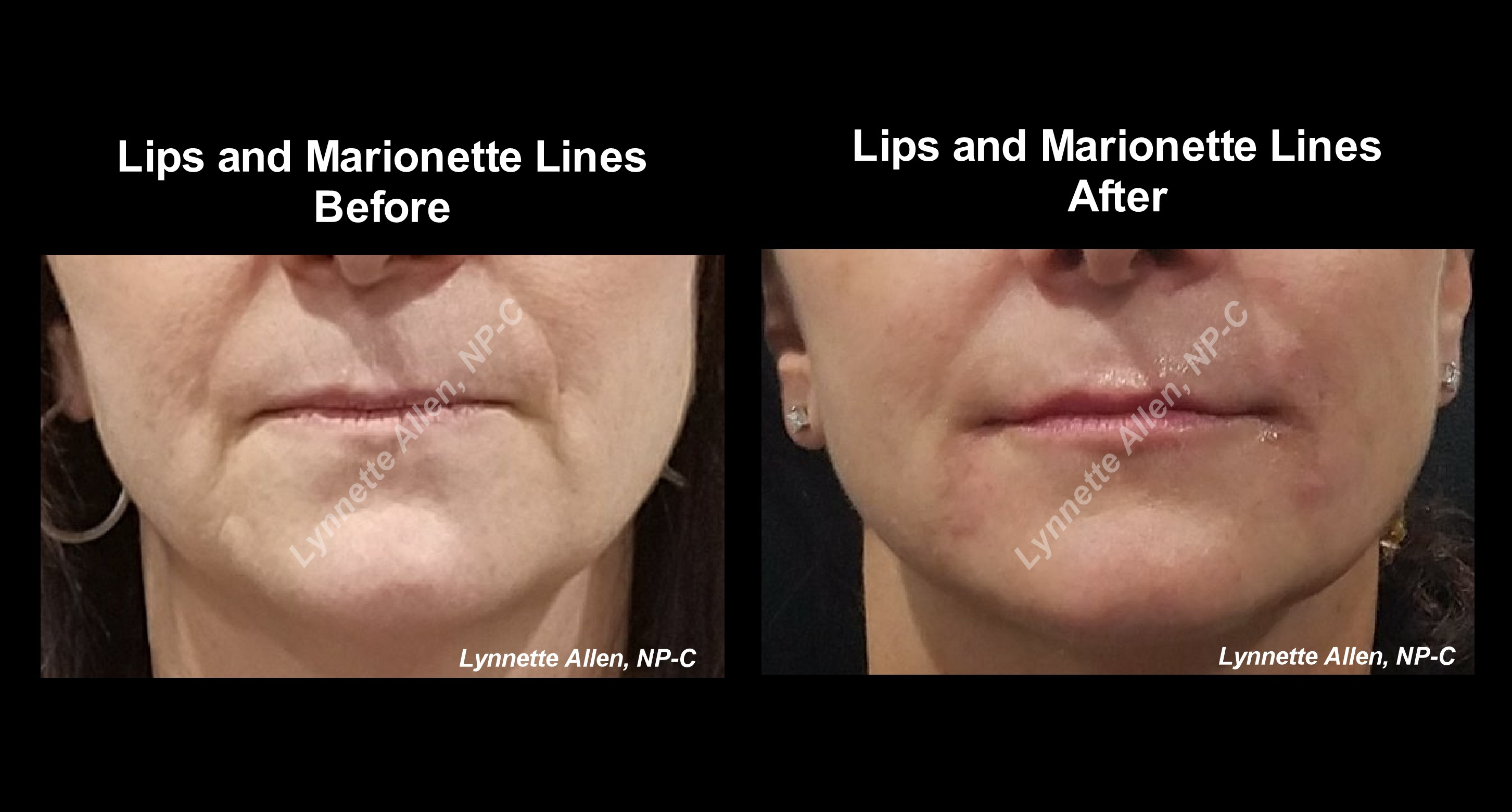 Filler for Lips before/after