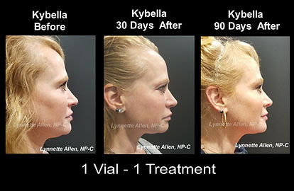 Before/After Kybella Treatment by Lynnette Allen, N-C