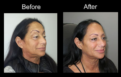 Fillers Before and After
