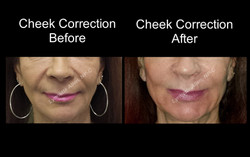 Cheeks Before & After