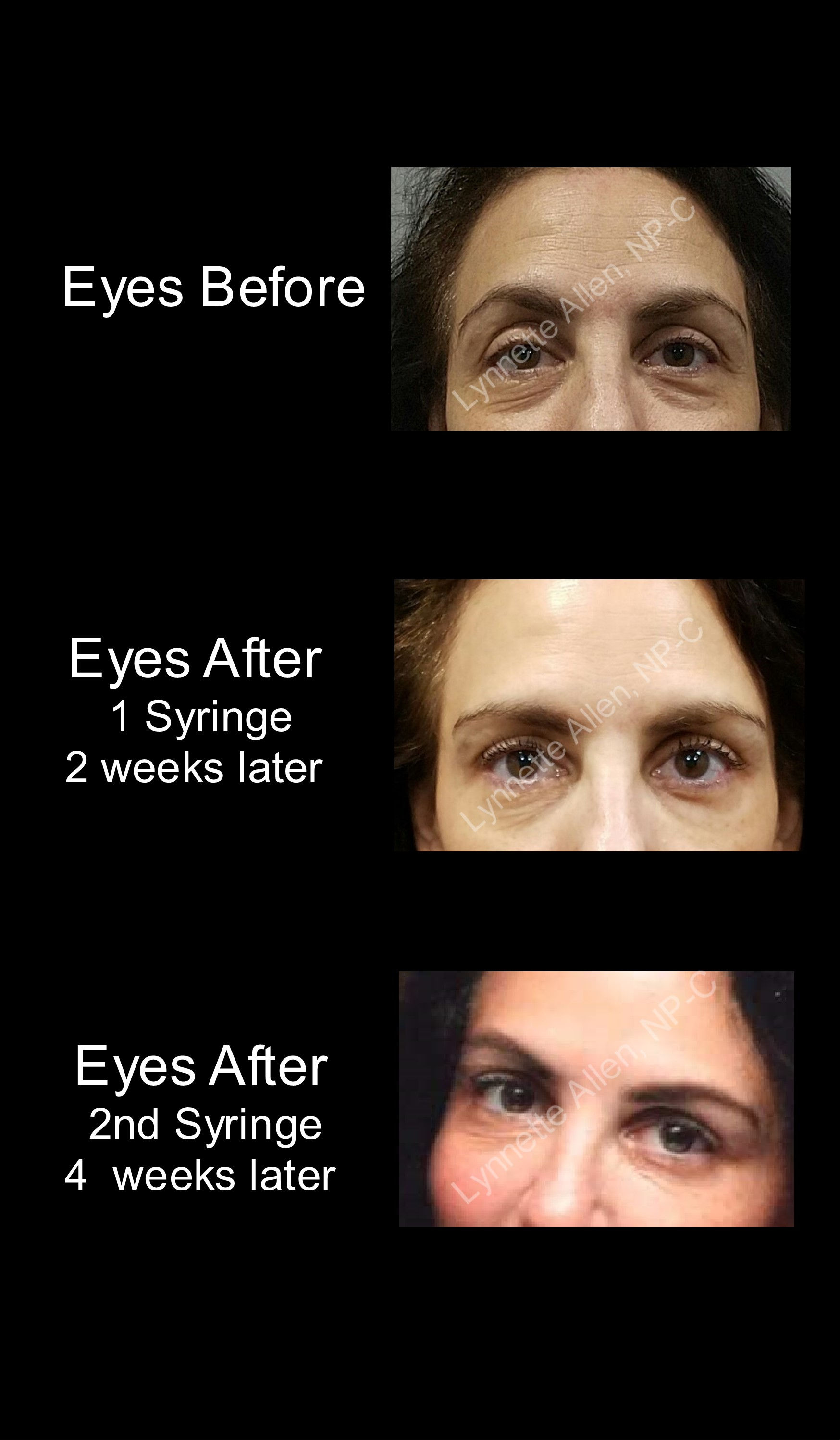 Eyes and Tears Troughs