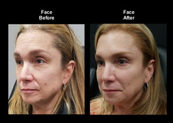 Nasal Labial Before & After