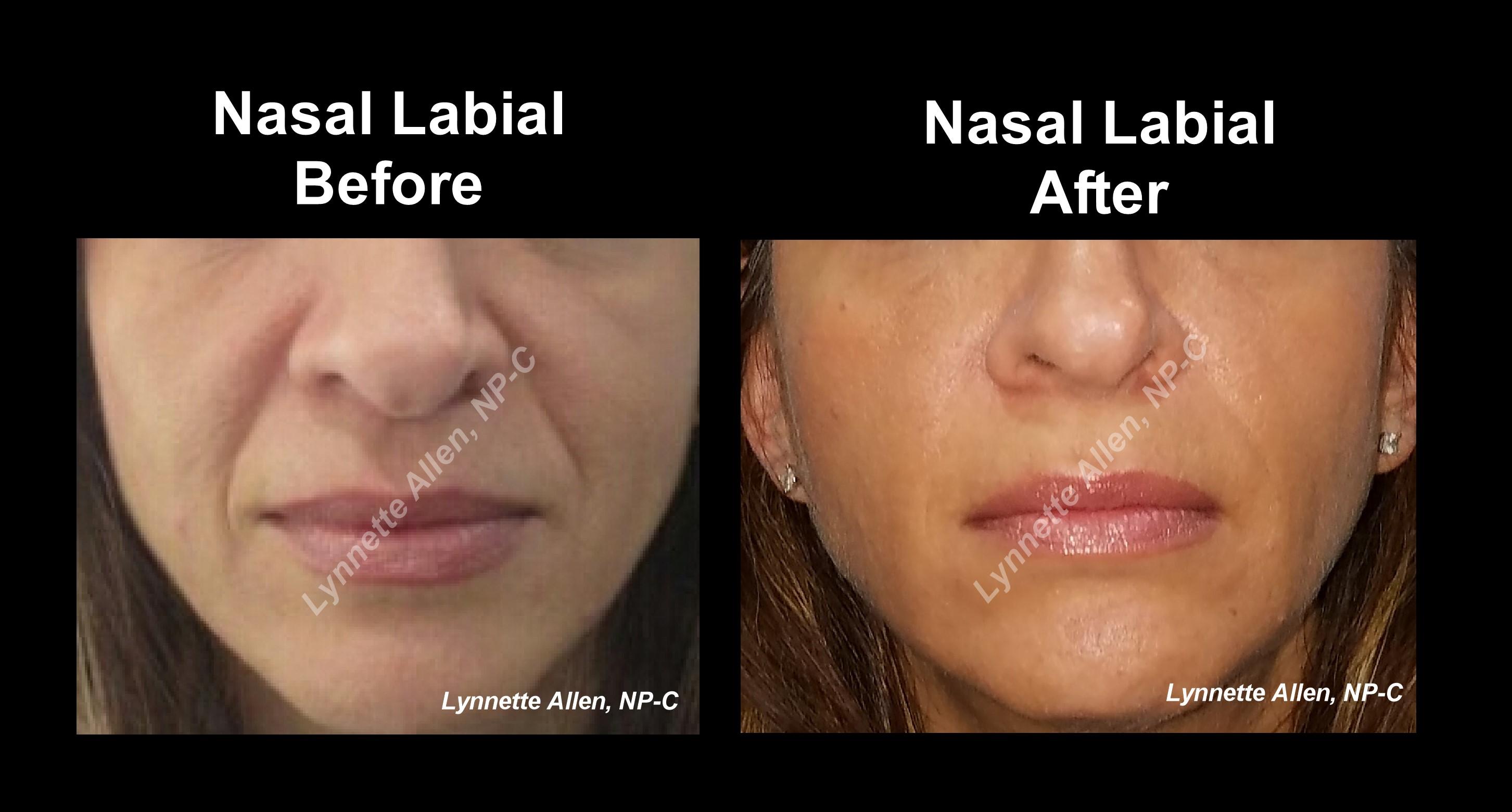 Filler For Nasal Labial Folds