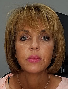 Lynnette Allen NP-C  Before andt After Liquid Face Lift