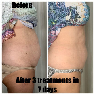 CMSlim before and after 3 treatments