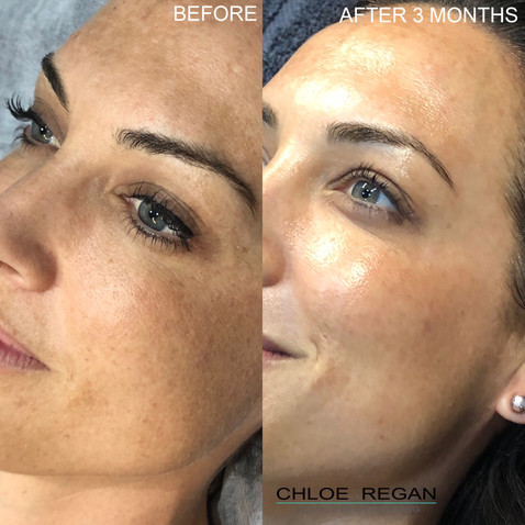Cosmelan Peel, depigmentation treatment Before and 3 months After