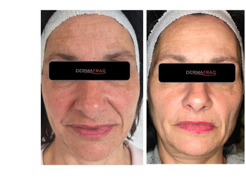 Dermafrac before and after