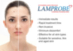 lamprobe sunshine coast qld chloe regan cosmetics and tattooing lesion removal