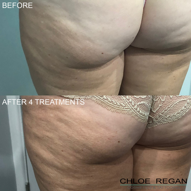 Alpha Shape body before and after 4 treatments