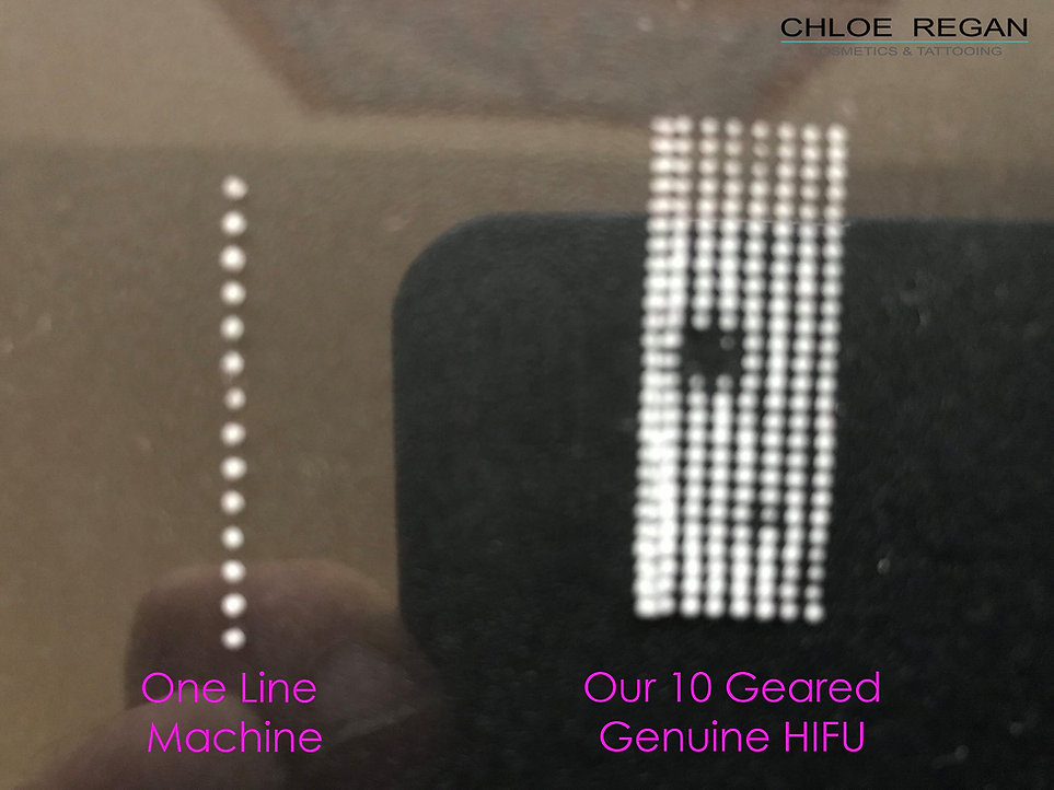 10 Gered Genuine HIFU VS One Line machine