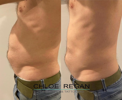 CMSlim body and stomach contouring and fat reduction before and after