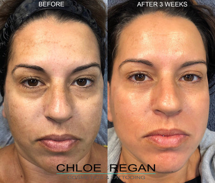 Cosmelan Peel, depigmentation treatment Before and 21 days After