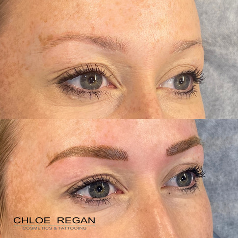 Cosmetic Eyebrow Tattooing before and after