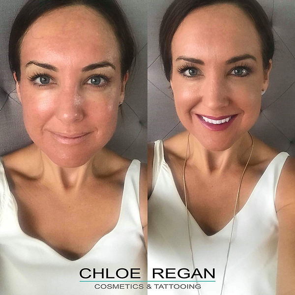 Day 5 Cosmelan Peel client blog, depigmentation treatment, chloe regan cosmetics and tattooing sunshine coast qld